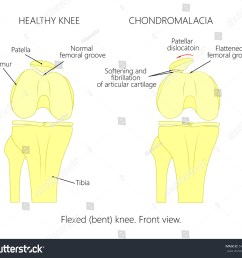 illustration diagram of normal knee joint and a knee with chondromalacia patella flexed  [ 1500 x 1350 Pixel ]