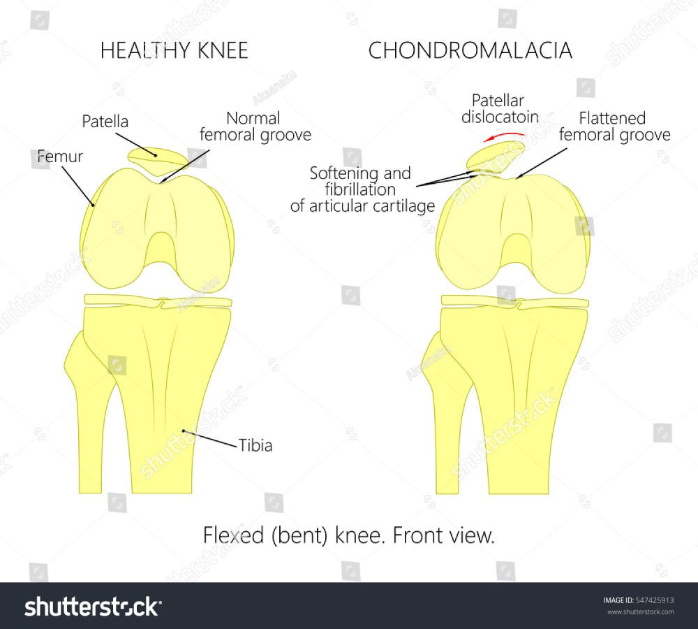 medium resolution of illustration diagram of normal knee joint and a knee with chondromalacia patella flexed