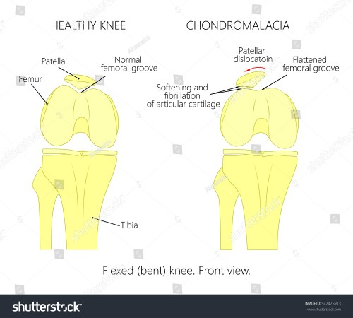 small resolution of illustration diagram of normal knee joint and a knee with chondromalacia patella flexed