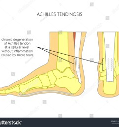 illustration of skeletal ankle side view and back view with tendinosis of achilles tendon [ 1500 x 1350 Pixel ]
