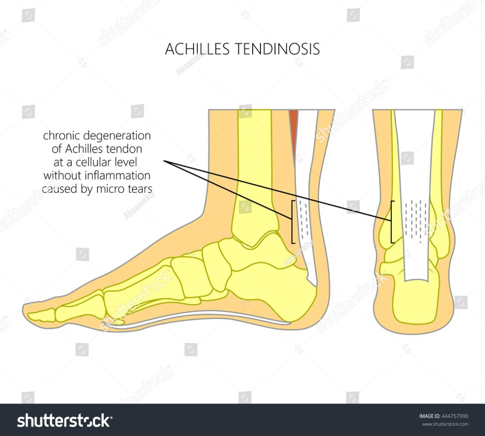 medium resolution of illustration of skeletal ankle side view and back view with tendinosis of achilles tendon