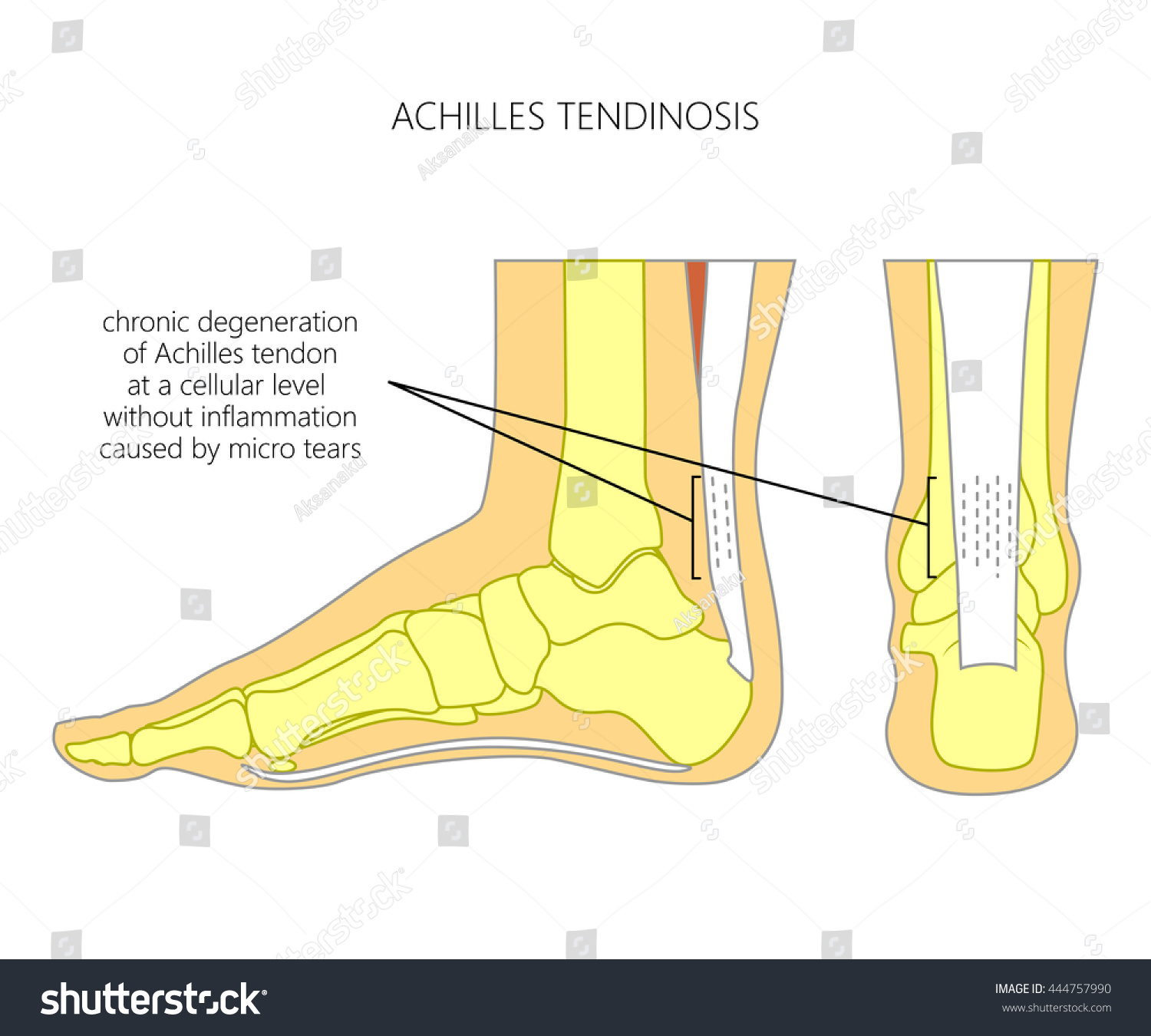hight resolution of illustration of skeletal ankle side view and back view with tendinosis of achilles tendon