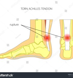 illustration of skeletal ankle side view and back view with torn achilles tendon  [ 1500 x 1350 Pixel ]