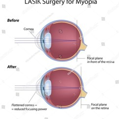 Diagram For Eye Surgery Cartoon Club Car Wire Wiring 48 Volt Not Lasik Myopia Stock Vector 94216159 Shutterstock