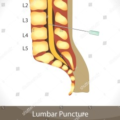Lumbar Puncture Diagram Ryobi Ss30 Parts Detailed Stock