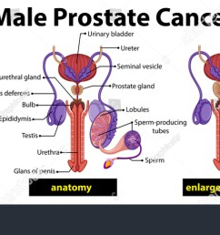 male prostate cancer diagram illustration  [ 1500 x 769 Pixel ]