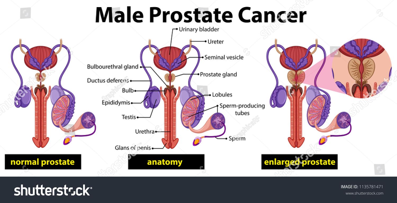 hight resolution of male prostate cancer diagram illustration
