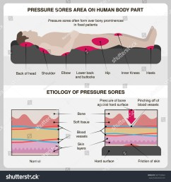 man with pressure sores pressure sores area on human body part and etiology of pressure [ 1500 x 1600 Pixel ]