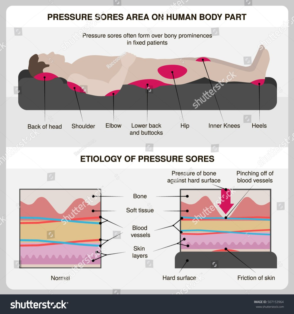medium resolution of man with pressure sores pressure sores area on human body part and etiology of pressure