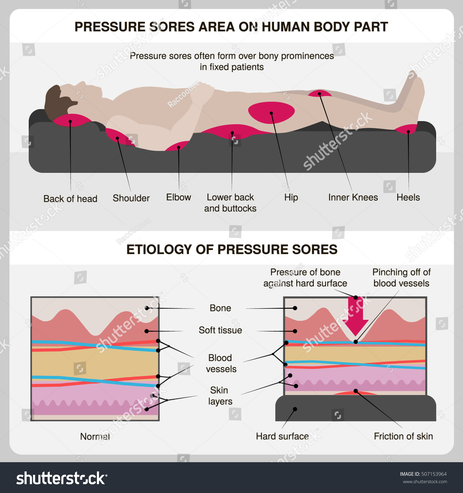 hight resolution of man with pressure sores pressure sores area on human body part and etiology of pressure