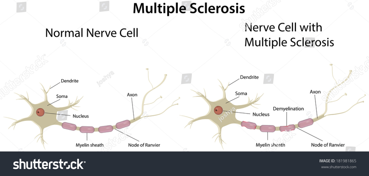 labelled diagram of nerve cell wiring two way light switch multiple sclerosis labeled ez canvas