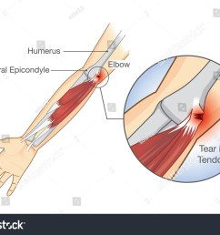 muscle injury and tear in tendon at elbow area illustration about medical and health  [ 1500 x 1111 Pixel ]
