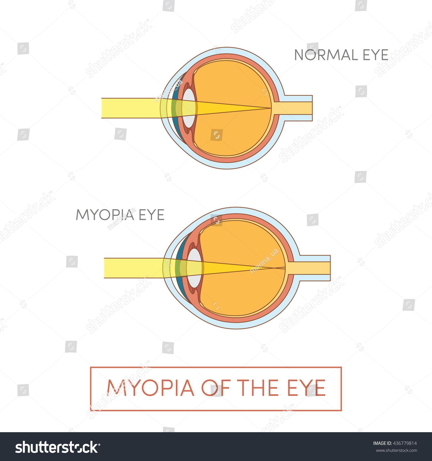 hight resolution of myopia of the eye vector illustration