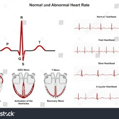 Healthy Heart Diagram Ge Dishwasher Wiring Normal Abnormal Rate Infographic Stock