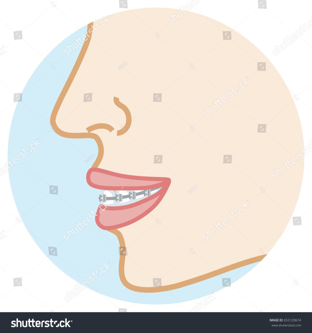 medium resolution of orthodontic appliance face close up side view