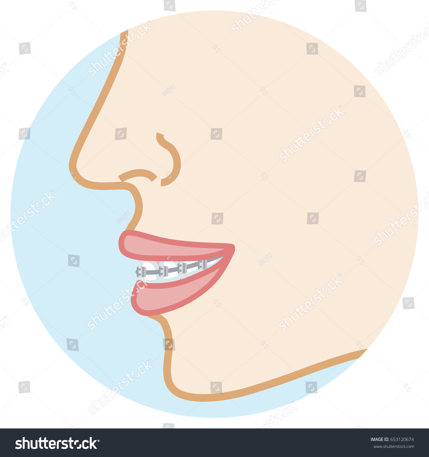hight resolution of orthodontic appliance face close up side view