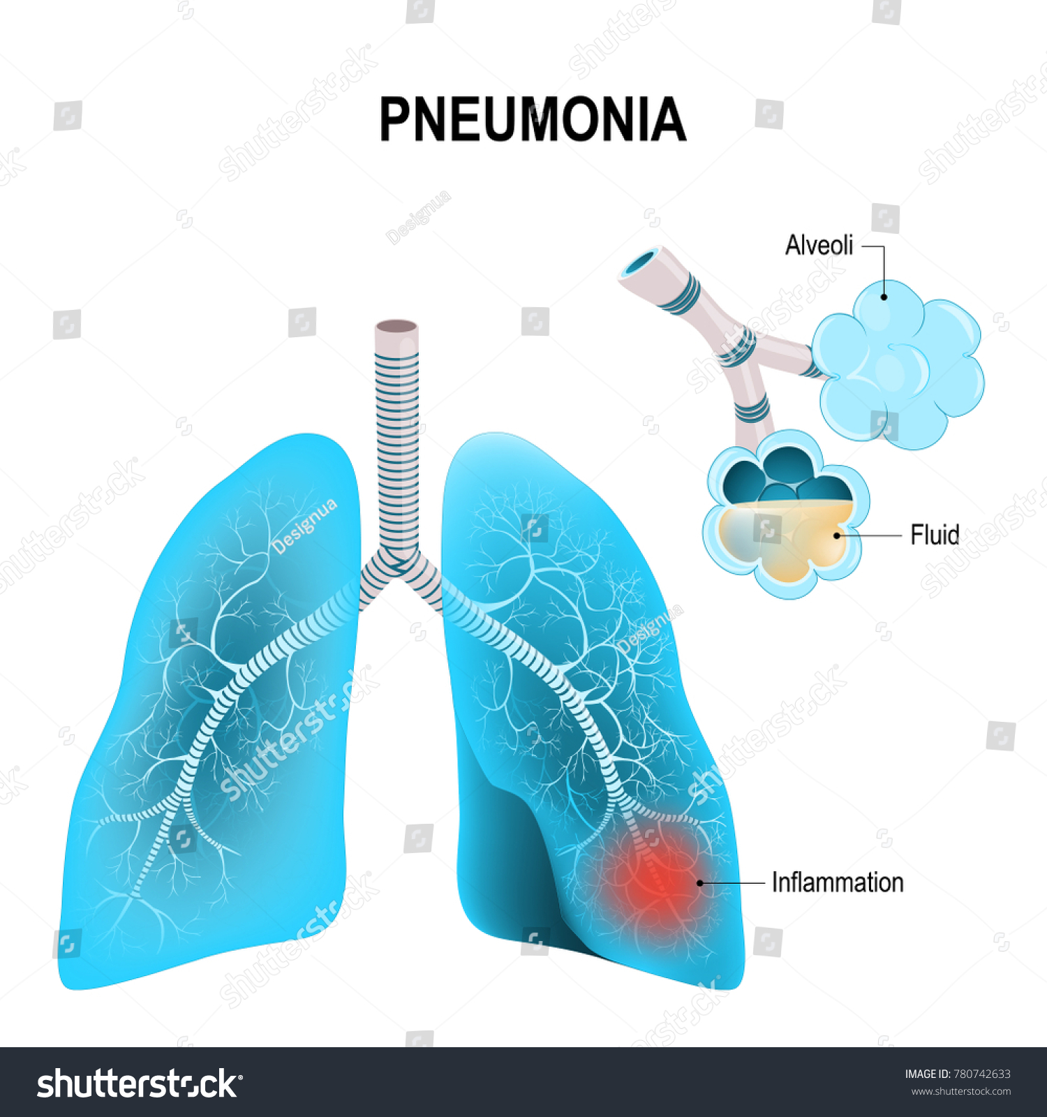 hight resolution of pneumonia normal and inflammatory condition of the lung and inflamed alveoli with fluid