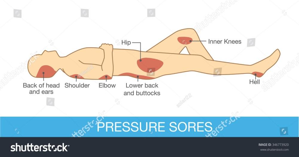 medium resolution of pressure sores area on human body part