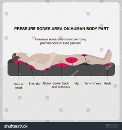 pressure sores area on human body part vector illustration  [ 1500 x 1600 Pixel ]