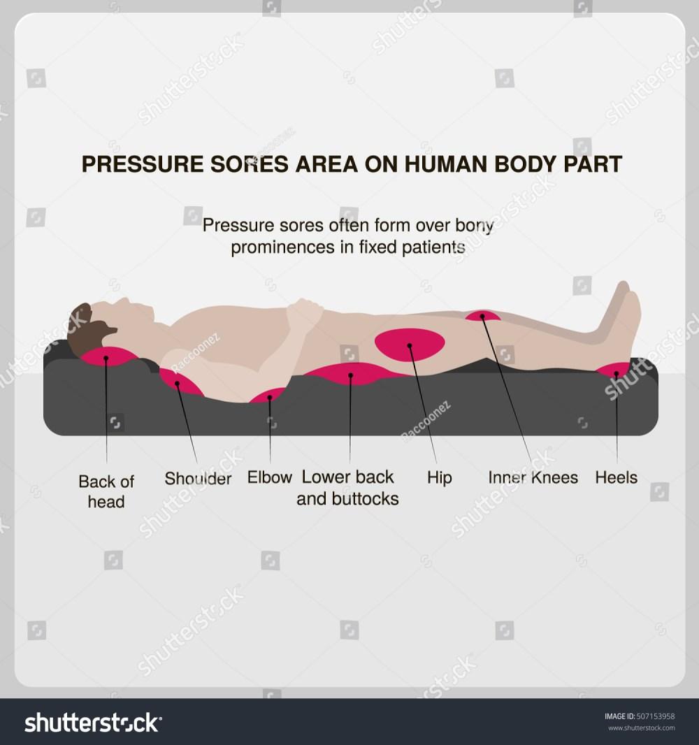 medium resolution of pressure sores area on human body part vector illustration