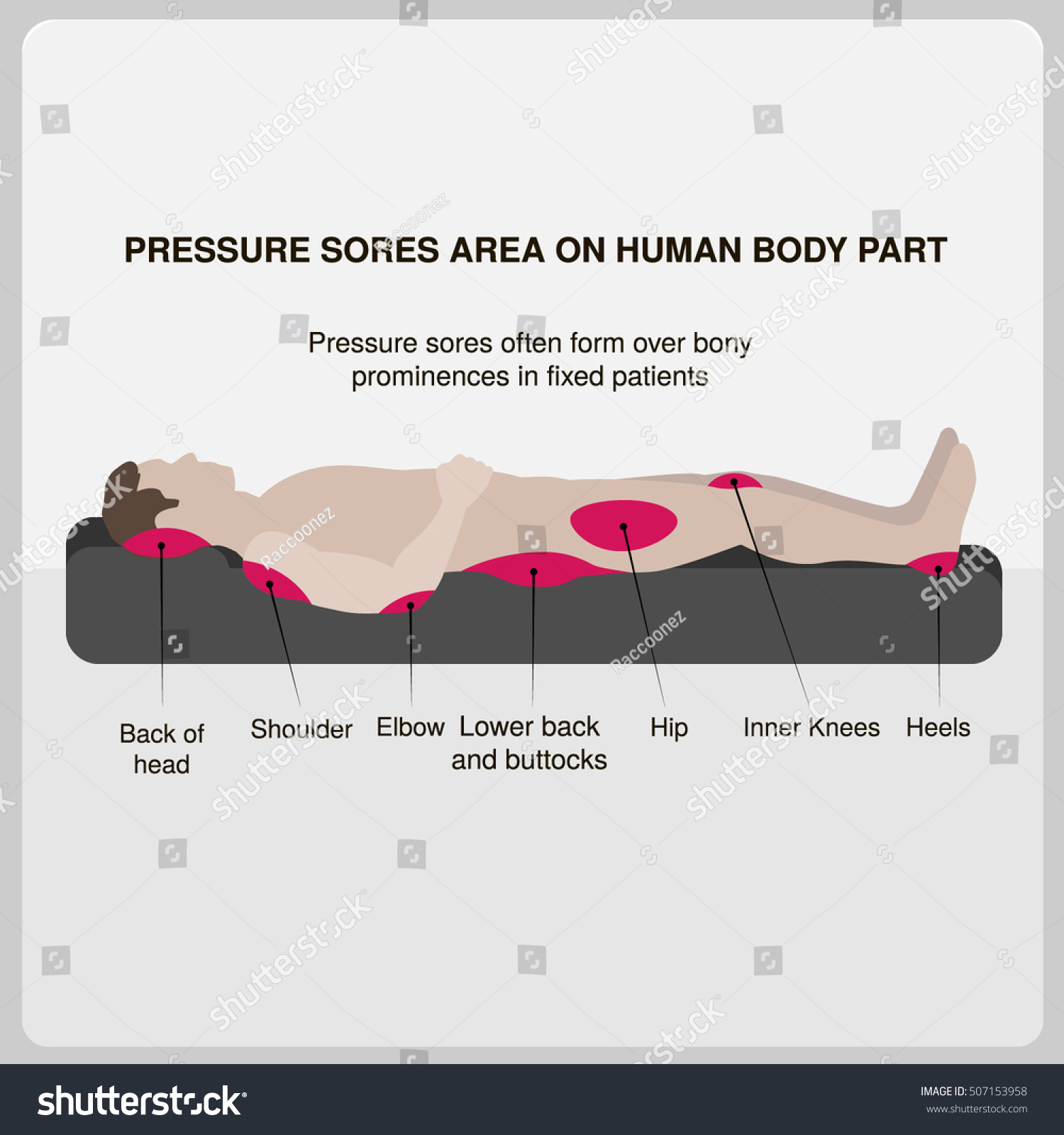 hight resolution of pressure sores area on human body part vector illustration