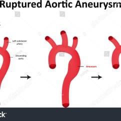 Abdominal Aorta Diagram Wiring 7 Pin Plug Australia Ruptured Aortic Aneurysm Labeled Stock Vector