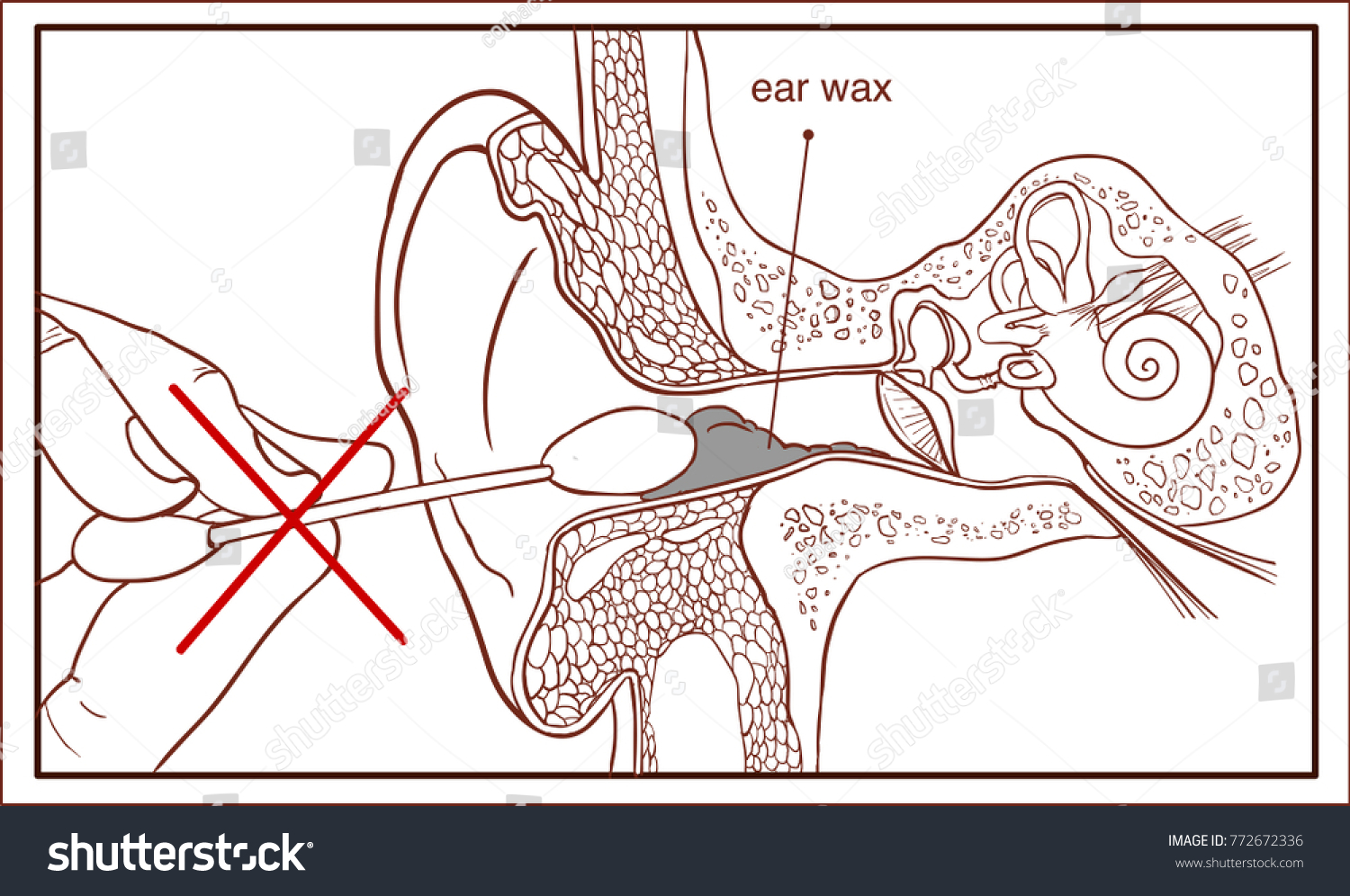 hight resolution of section of the ear with the earwax colorful diagram
