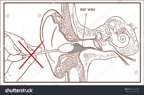 small resolution of section of the ear with the earwax colorful diagram