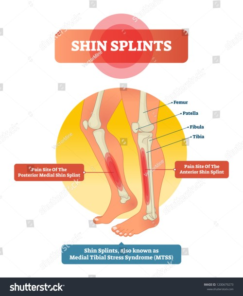 small resolution of leg muscle sport trauma and bone pain labeled diagram isolated femur patella fibula tibia and foot bones with shown injury location