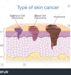 skin layer have 3 type of cancer in one illustration about medical diagram  [ 1500 x 1138 Pixel ]