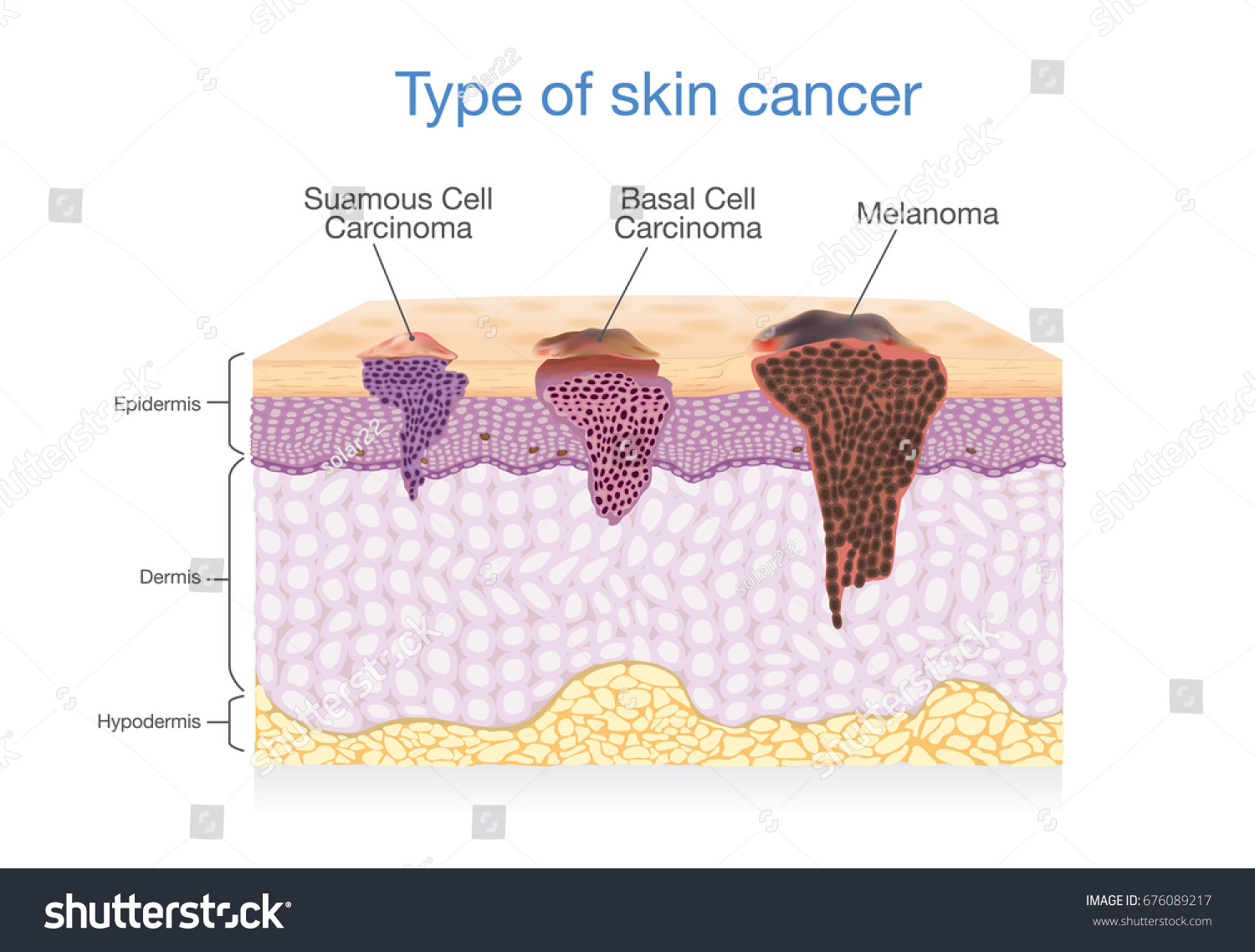 hight resolution of skin layer have 3 type of cancer in one illustration about medical diagram