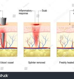 body diagram wound healing my wiring diagrambody diagram wound healing wiring diagram can body diagram wound [ 1500 x 1111 Pixel ]