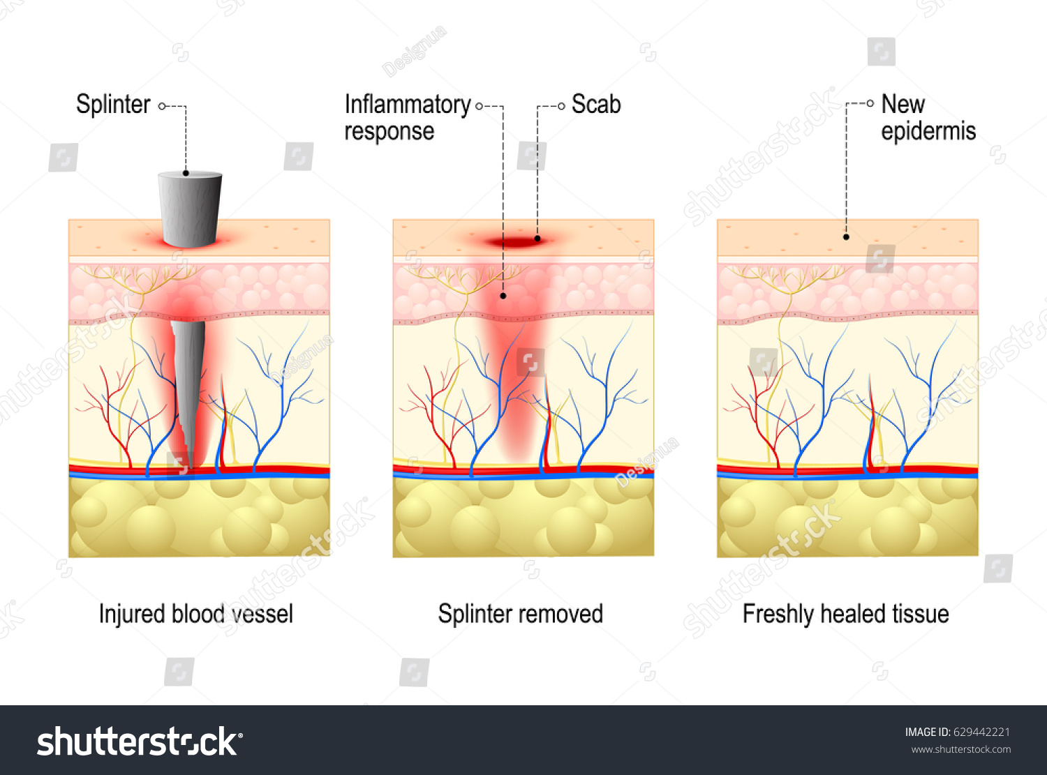 hight resolution of body diagram wound healing my wiring diagrambody diagram wound healing wiring diagram can body diagram wound