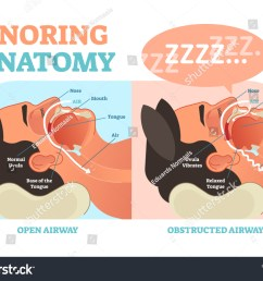 snoring anatomy medical vector diagram with nose mouth tongue and air passage  [ 1500 x 1162 Pixel ]