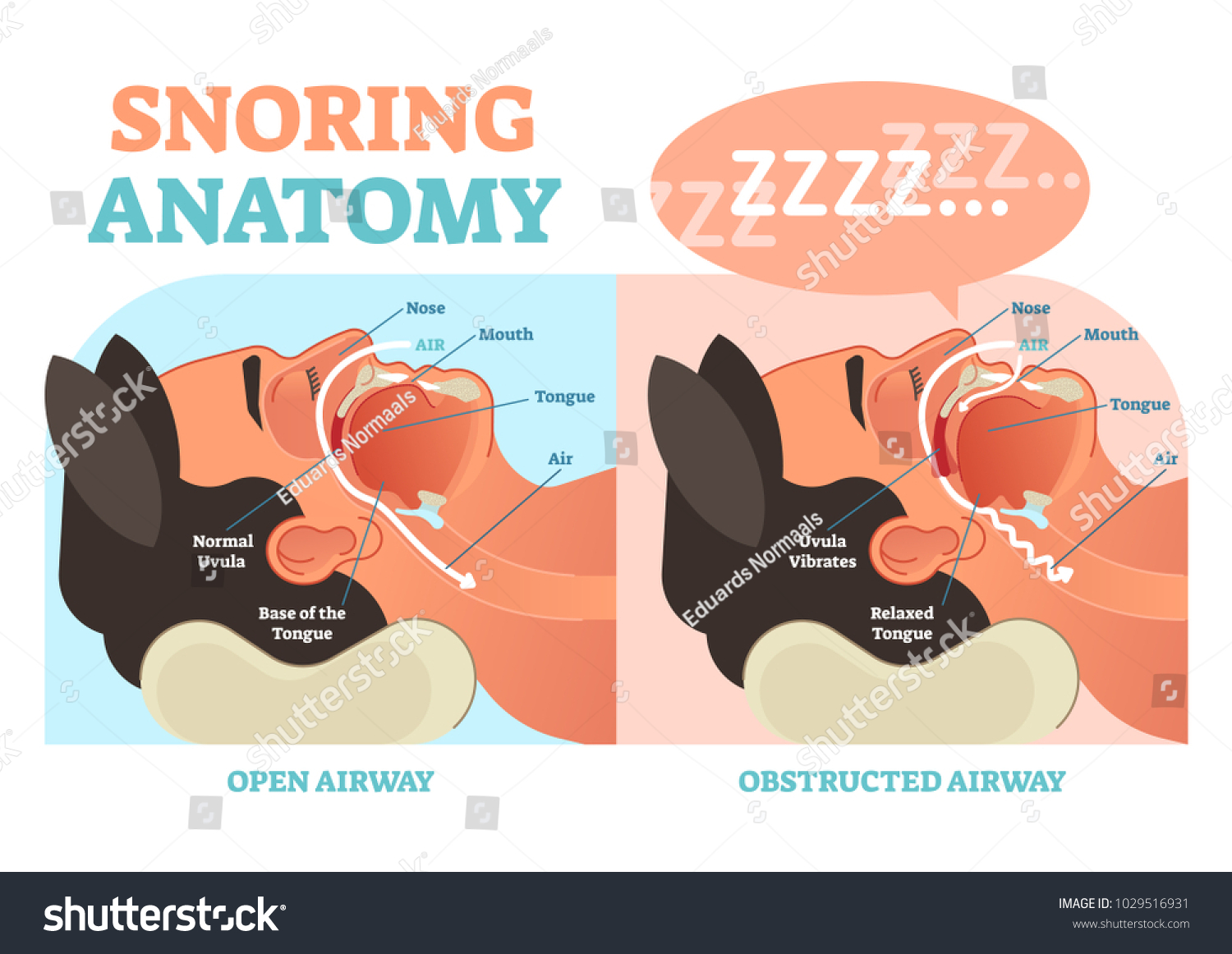 hight resolution of snoring anatomy medical vector diagram with nose mouth tongue and air passage