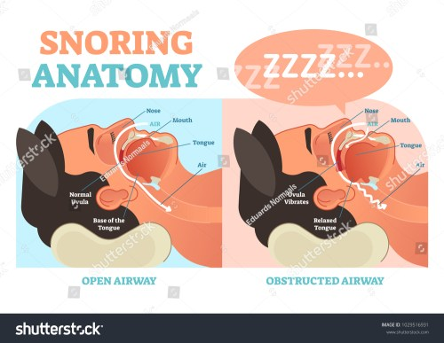 small resolution of snoring anatomy medical vector diagram with nose mouth tongue and air passage