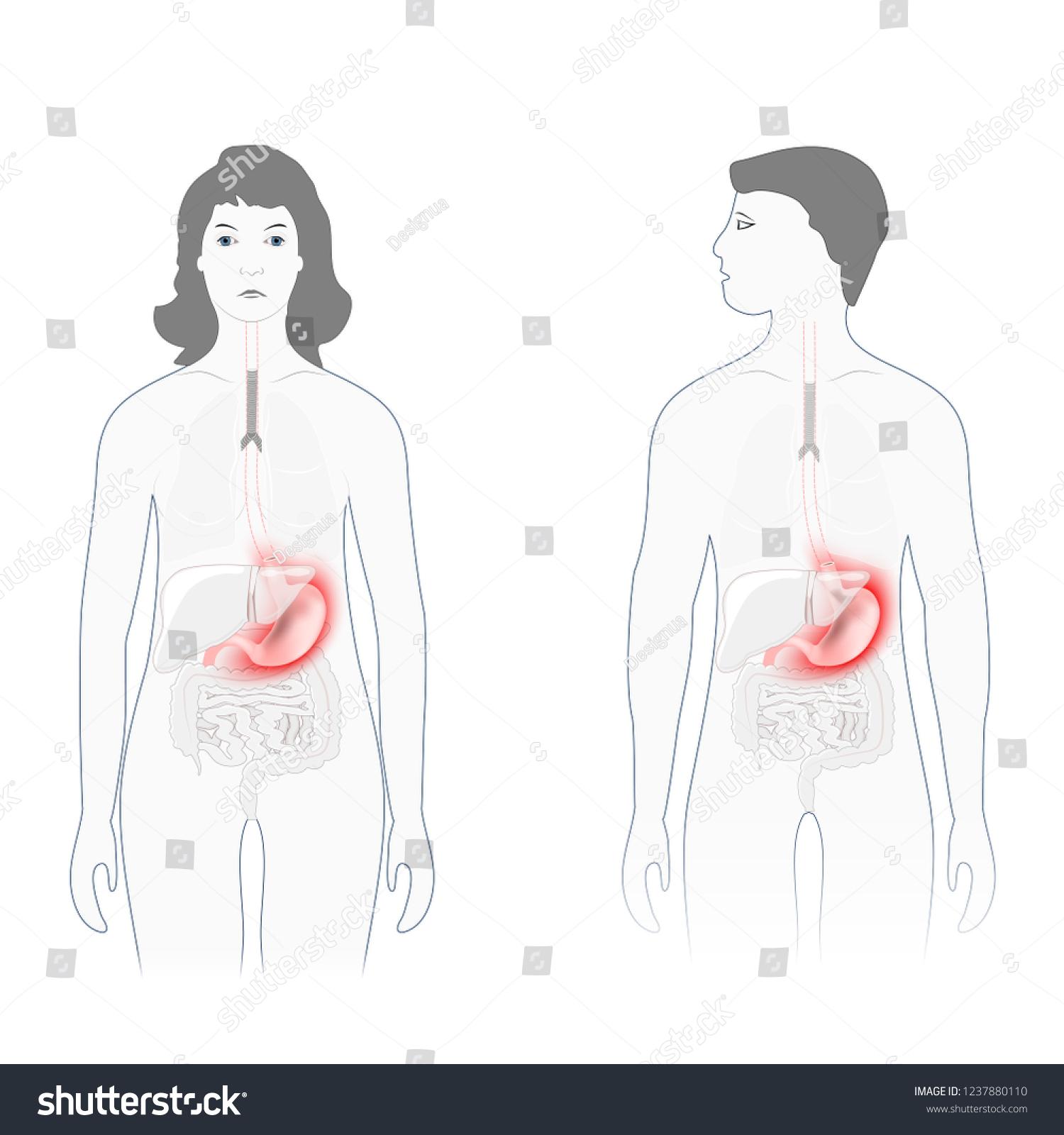hight resolution of stomach pain male female silhouette highlighted stock vector pain scale diagram female body diagram for pain