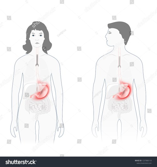 small resolution of stomach pain male female silhouette highlighted stock vector pain scale diagram female body diagram for pain