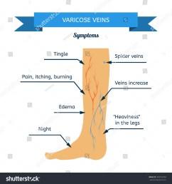symptoms of varicose veins women leg veins in profile [ 1500 x 1600 Pixel ]