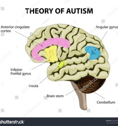 diagram of adhd brain theory of autism human brain illustration show specific [ 1500 x 1468 Pixel ]