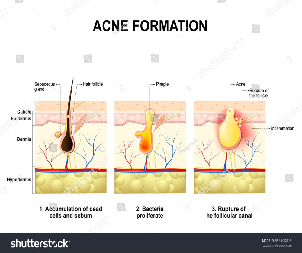 medium resolution of three stages of the acne formation in the human skin the sebum in the clogged
