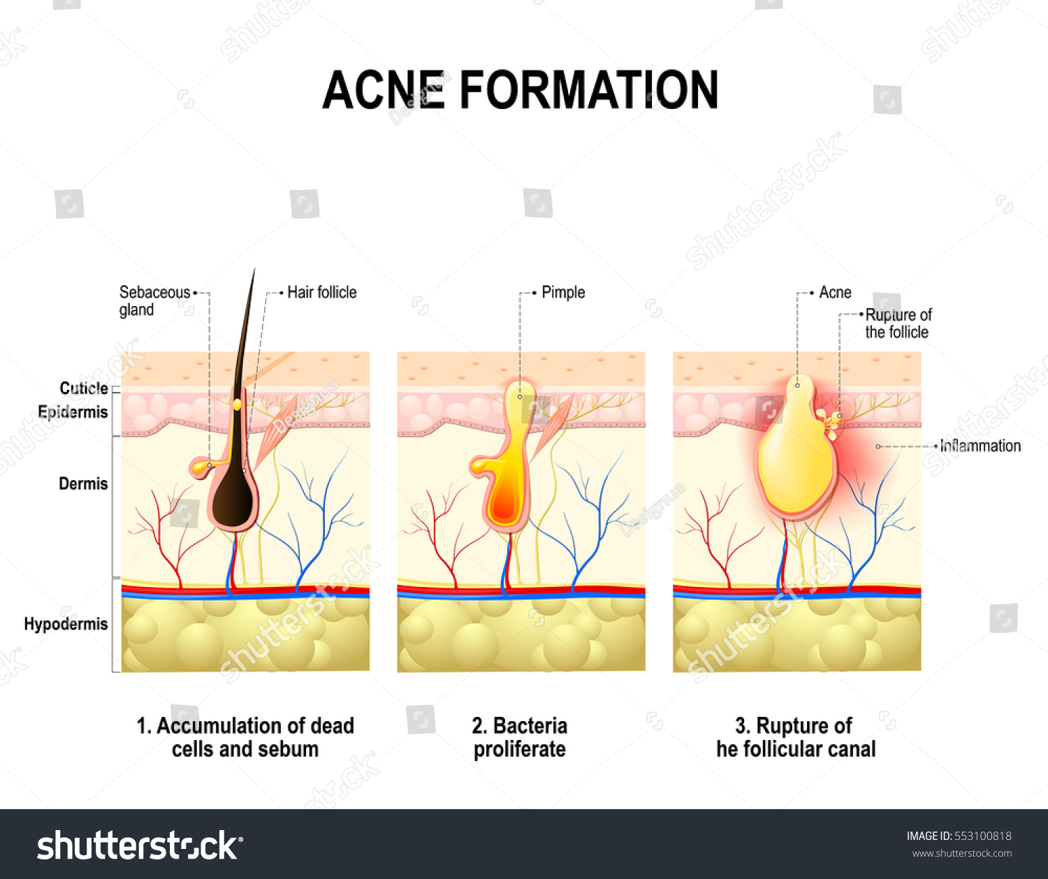 hight resolution of three stages of the acne formation in the human skin the sebum in the clogged