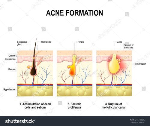 small resolution of three stages of the acne formation in the human skin the sebum in the clogged