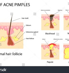 types of acne and pimples stages of development vector illustration [ 1500 x 1065 Pixel ]