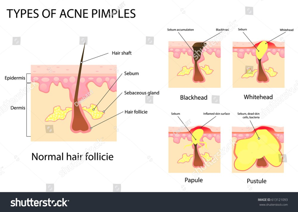 medium resolution of types of acne and pimples stages of development vector illustration