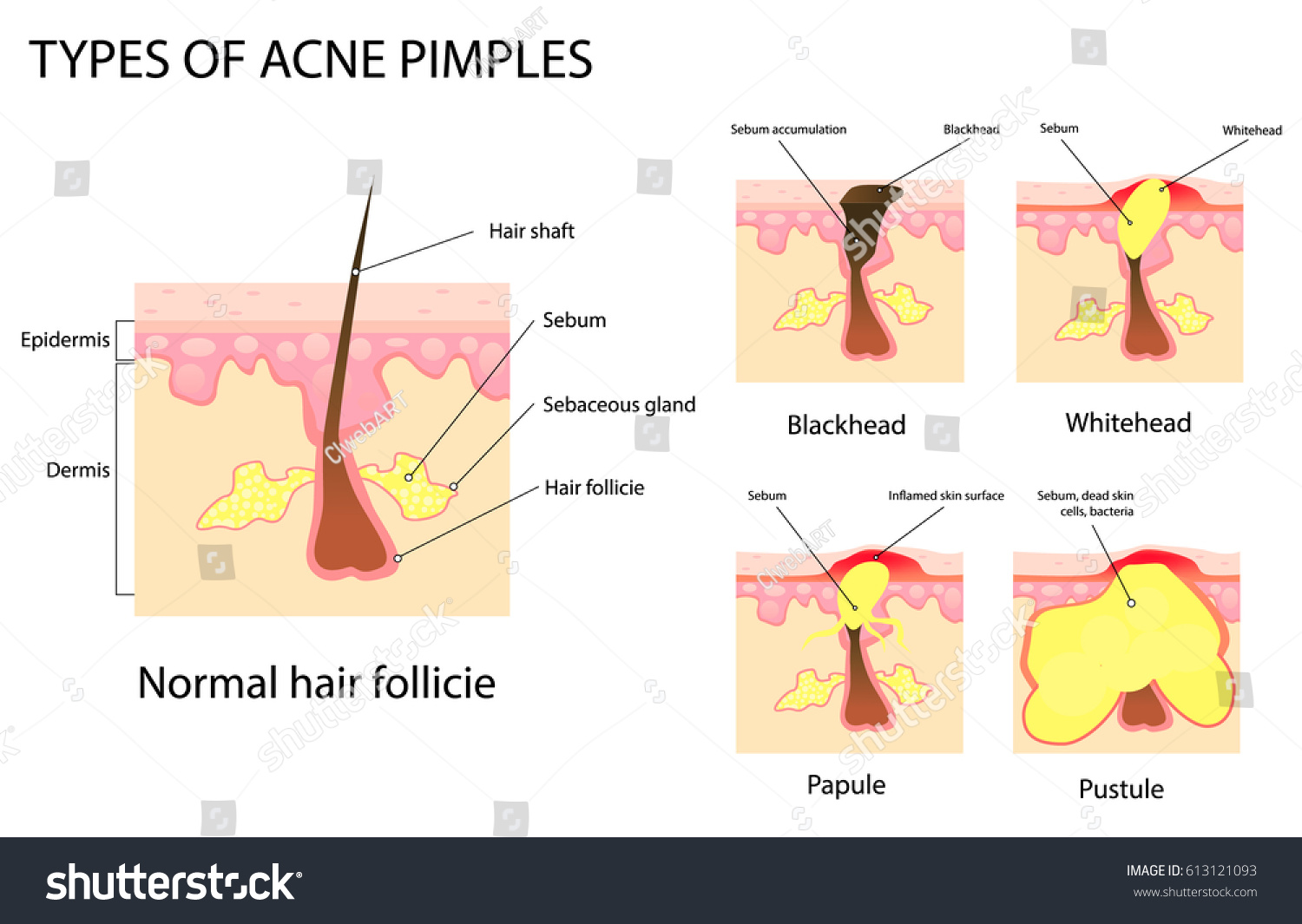 hight resolution of types of acne and pimples stages of development vector illustration