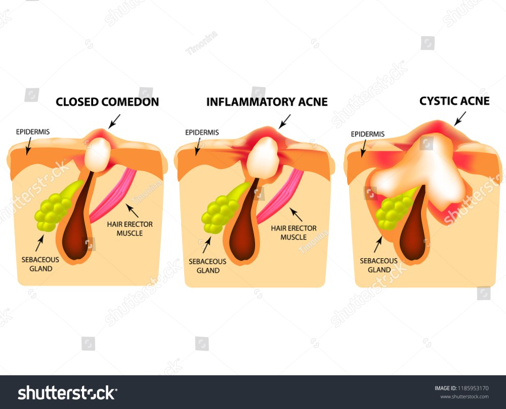 medium resolution of closed comedones inflammatory acne cystic acne the structure of