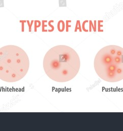 types of acne diagram illustration vector on white background beauty concept  [ 1500 x 700 Pixel ]