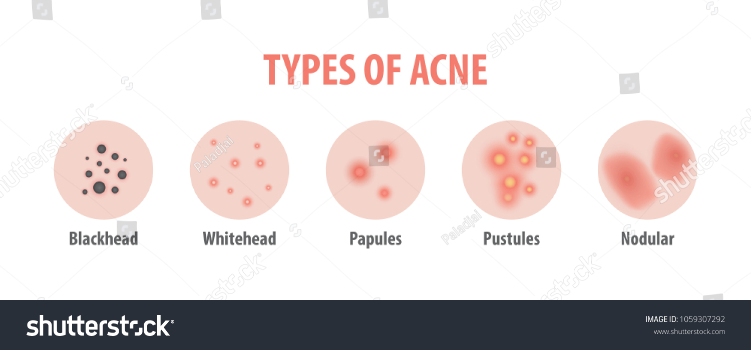 hight resolution of types of acne diagram illustration vector on white background beauty concept