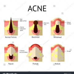 What Causes Acne Diagram 50 Amp Different Types Of Pimples Healthy